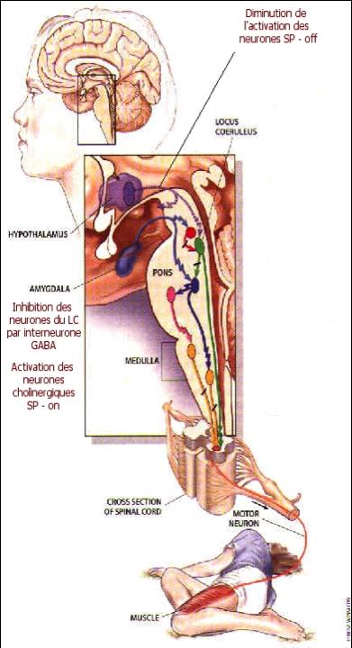 cataplexie