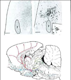coupe cerveau